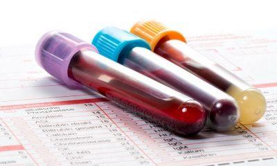 Une simple prise de sang pour détecter le cancer, c'est possible !
