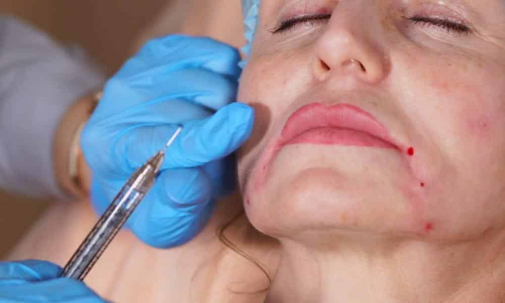 Mythes et réalités des injections contre les rides