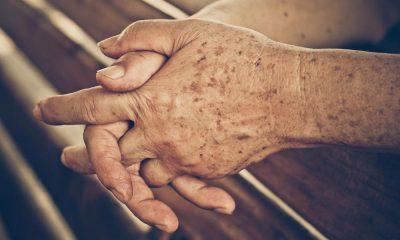 Taches de vieillesse : Voici comment les éviter