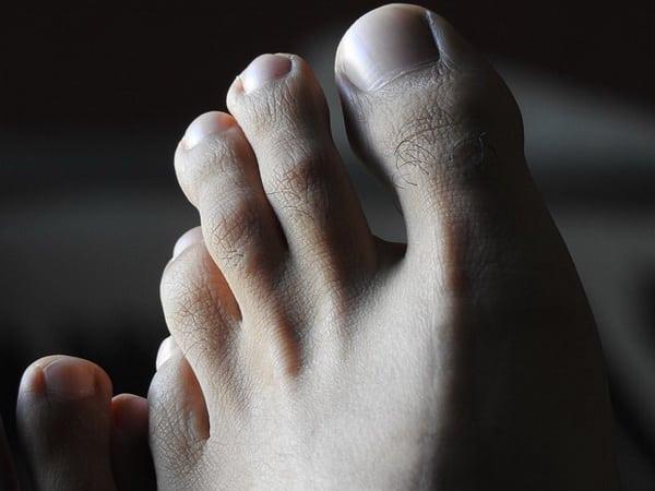 Les mycoses de l'ongle doivent être traitées.