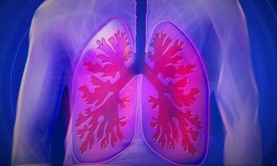 Une pneumonie est toujours dangereuse pour les seniors de plus de 65 ans